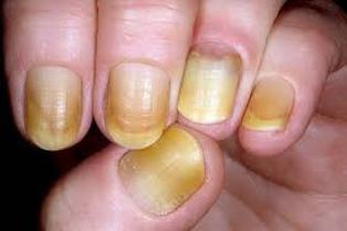 El síndrome de la uña amarilla