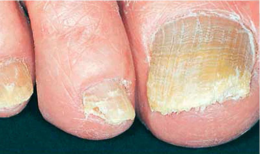 Infecciones por hongos en las uñas