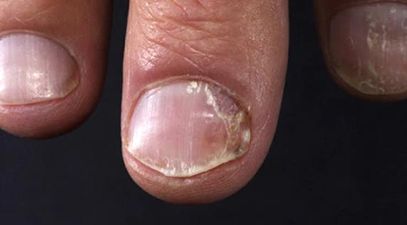 Psoriasis en uñas